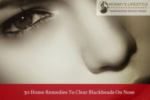 Eliminate Blackheads on Nose with These 30 Home Remedies