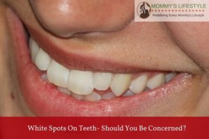 White Spots On Teeth – Should You Be Concerned?